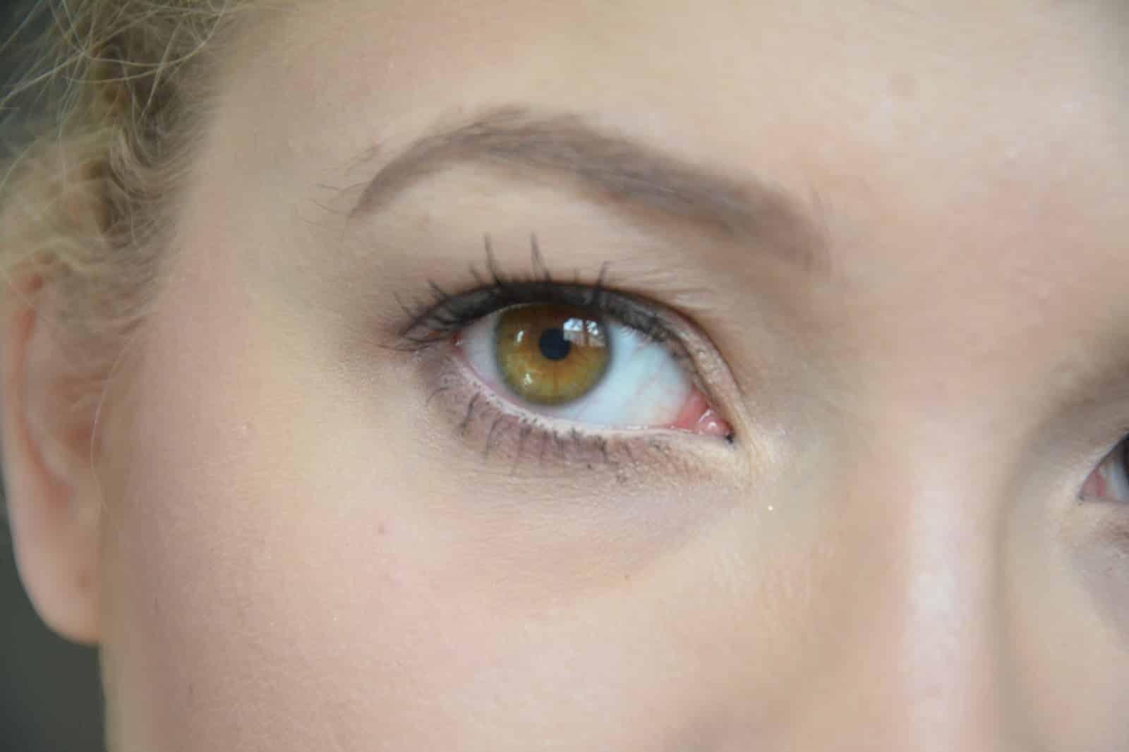 Lentilles : concernant les lentilles